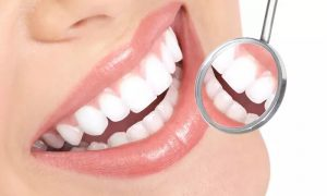 Choice of Dental Treatment at Basmat Al Bayan Medical Center - Dubaisavers