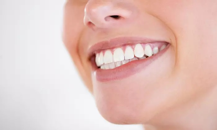 Metallic or Ceramic Braces for One or Both Arches at Montreal International Clinic - Dubaisavers