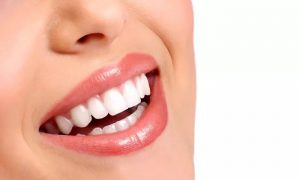Zoom Teeth Whitening Treatment with Optional Scale, Polish and Zoom Home Teeth Whitening Kits at Pearl Dental Clinic - Dubaisavers